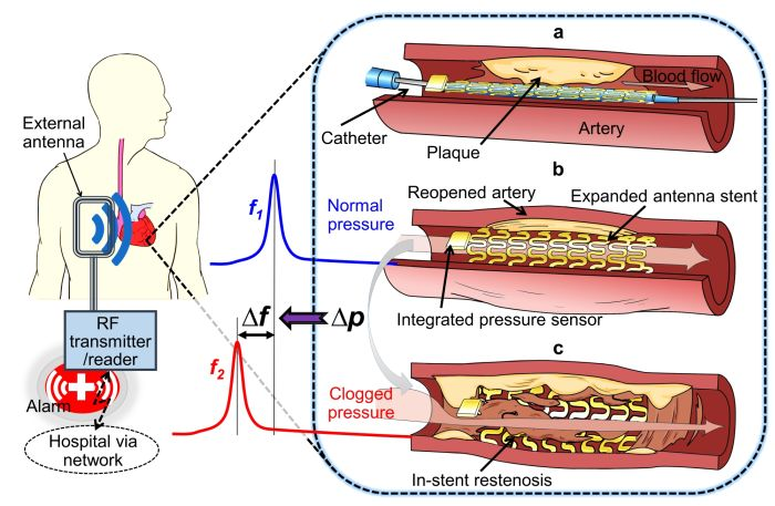 Conceptual schematic of the smart stent and its functions